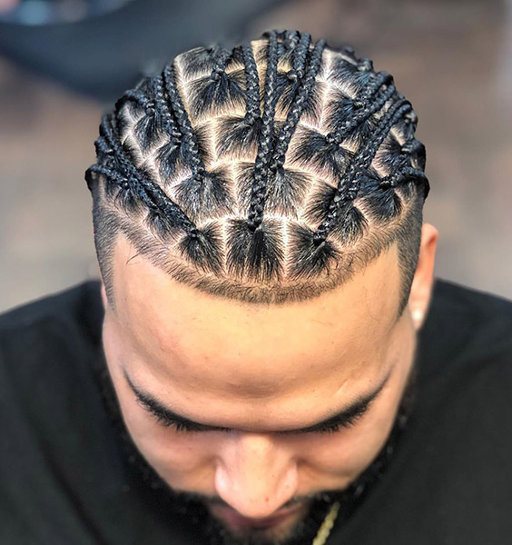 Thin Hairline with Braids